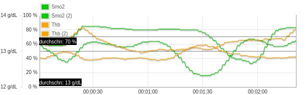 Smo2 & THB graph
